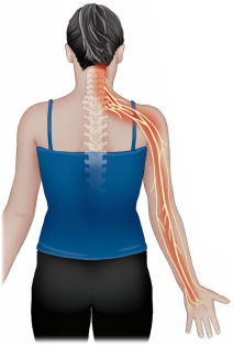 Treatment Guide for Cervical Radiculopathy
