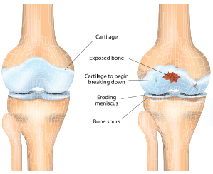 Treatment Guide for Knee Osteoarthritis