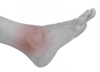 Treatment Guide for Ankle Sprains