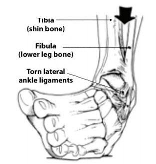 ankle-sprains-2-web