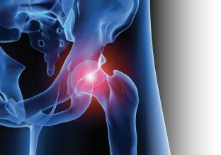 Treatment Guide for Femoral Acetabular Impingement